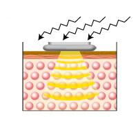 キャビテーションにより、脂肪細胞からセルライトがはがれ落ち、はがれたセルライトは乳化作用によりリンパ液の中へ。